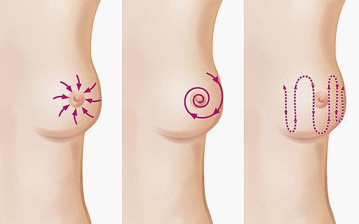 Ein sich in brust der wie fühlt an knoten Brustkrebs: Symptome,